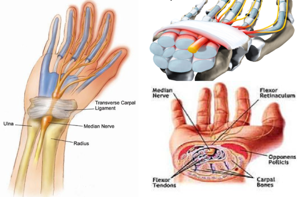 Penyakit Carpal Tunnel Syndrome